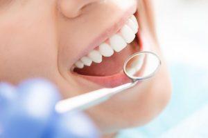 مراقبت های لازم بعد از دندان پزشکی