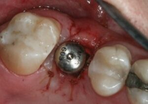 روش های جراحی ایمپلنت